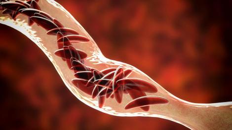 La prise en charge de la drépanocytose reste un défi majeur au Bénin