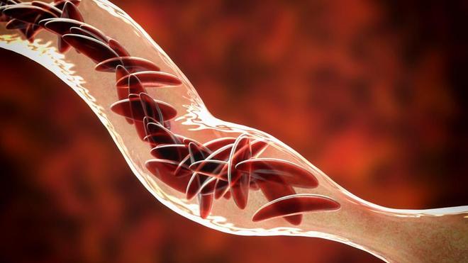 La drépanocytose peut boucher les vaisseaux sanguins (photo d'illustration)