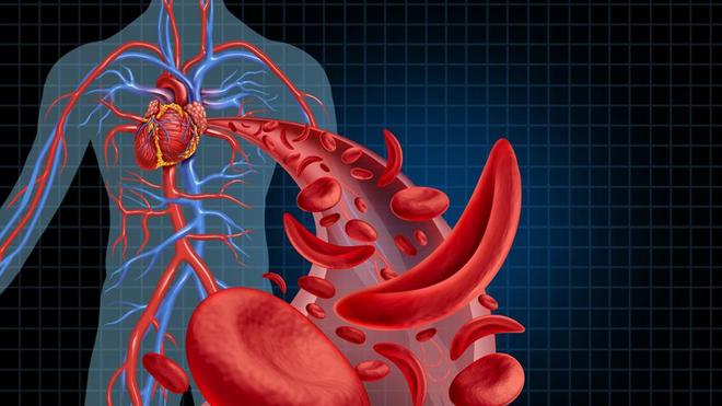 """La drépanocytose peut """"boucher"""" les vaisseaux sanguins, en particulier dans les articulations."""