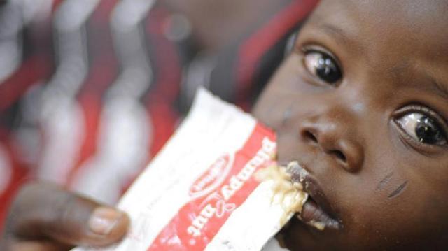 Malnutrition : plus de deux millions de Burkinabés en insécurité alimentaire