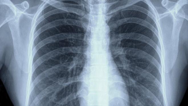 Un scanner des poumons (Illustration)