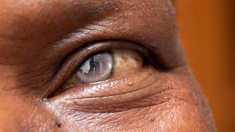 Au Mali, une caravane pour redonner la vue aux malvoyants