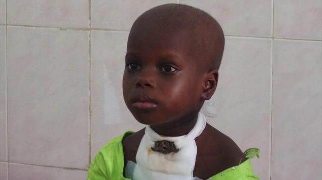 Cameroun : Environ 1000 enfants de moins de 15 ans touchés par le cancer chaque année