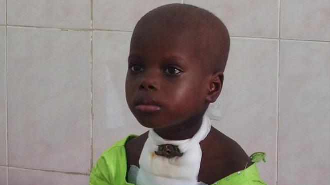 Le cancer touche beaucoup d'enfants au Cameroun (Illustration)