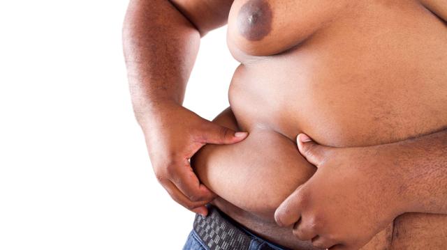 L'obésité, ce mal qui grignote l'Afrique