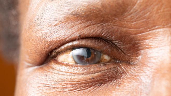 La cataracte est l'une des principales causes de cécité au Cameroun (Illustration)