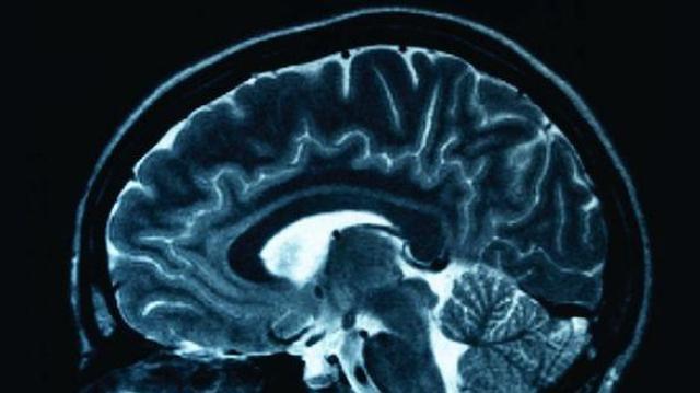 """Au Cameroun, l'épilepsie est trop souvent """"laissée"""" aux guérisseurs...."""
