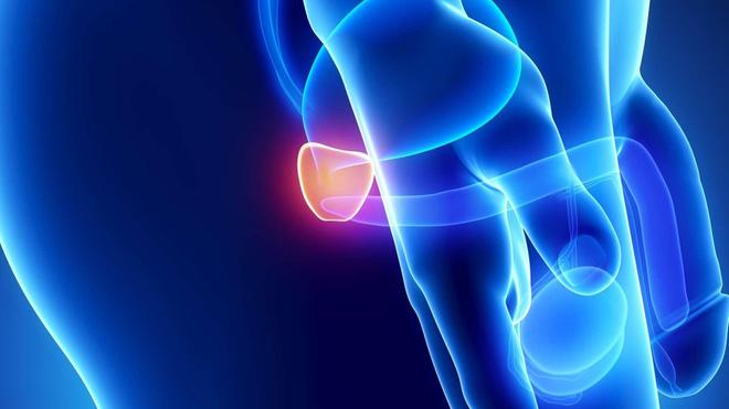 Le cancer de la prostate menace les hommes de plus de 45 ans (Illustration)