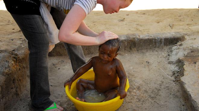 Au Tchad, les albinos ont difficilement accès aux soins de santé (Illustration)
