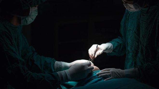 La liposuccion est l'opération esthétique la plus pratiquée dans le monde (Illustration)