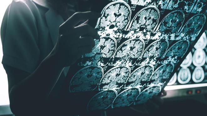 L'Alzheimer est une maladie qui touche beaucoup d'Africains (Illustration)