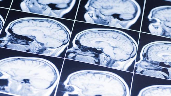 L'accident vasculaire cérébral est une perte soudaine de la fonction du cerveau (Illustration)
