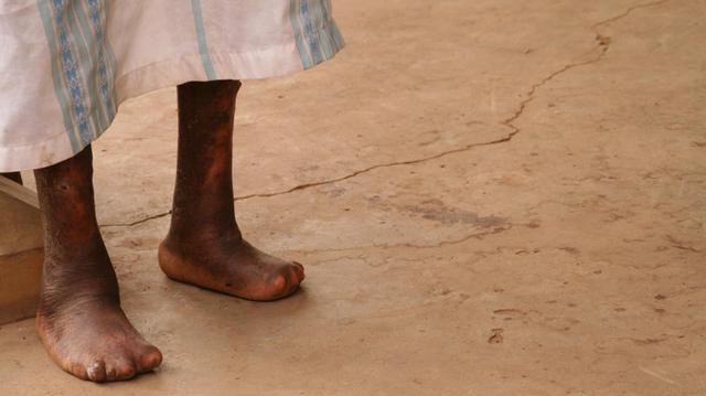 Comores : au coeur de la lutte contre la lèpre