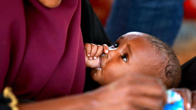 En Afrique, beaucoup d'enfants ne reçoivent pas assez de nourritures (Illustration)