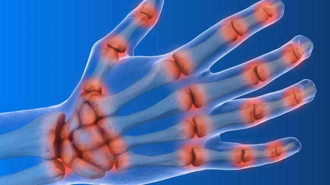 L'arthrose est une maladie propre aux os