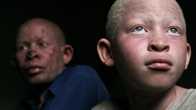 Un albinos et son père à Dar Es Salaam, en Tanzanie (photo d'illustration)