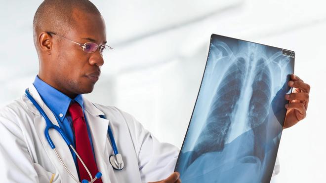 La tuberculose est provoquée par une bactérie qui s'attaque aux poumons