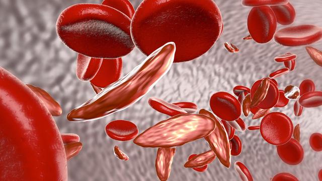 Drépanocytose : Où en est la Guinée ?