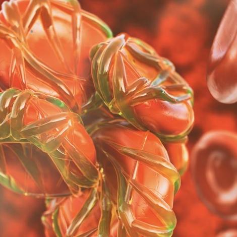 La thrombose veineuse