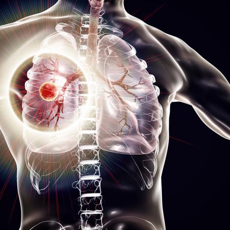 La tuberculose pulmonaire