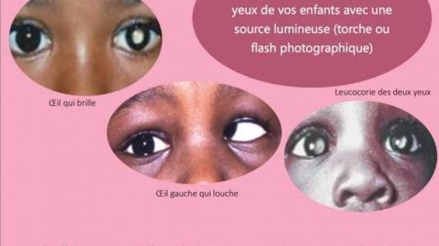 Le rétinoblastome, le cancer de l'oeil de l'enfant