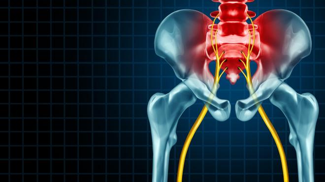 Les lombaires et les nerfs sciatiques sont des zones sensibles