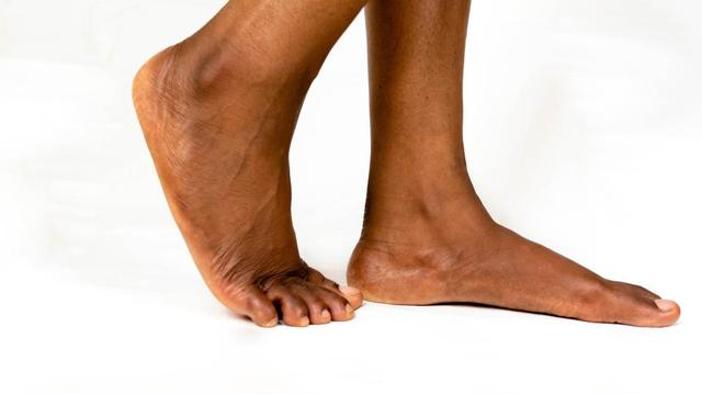 Plaies chroniques du pied