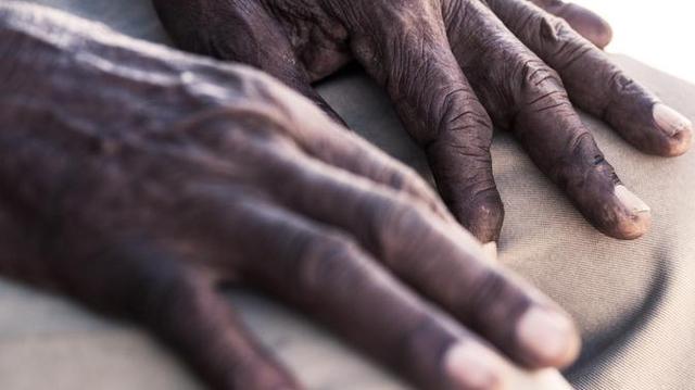 Un bracelet pour sauver les malades d'Alzheimer au Cameroun