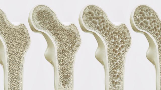 L'ostéoporose : une maladie silencieuse qui n'épargne pas l'Afrique