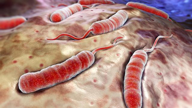 Choléra :  au Nigéria, une épidémie fait au moins 20 morts