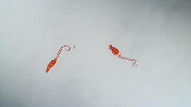 La bilharziose est provoquée par des vers parasites appelés schistosomes (photo d'illustration)