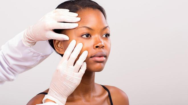 Les cancers de la peau sont difficiles à diagnostiquer en Afrique (Image d'illustration)