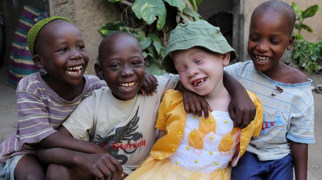 Nos conseils pour bien vivre son albinisme
