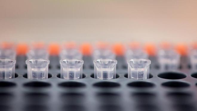 Le séquençage du virus est important pour contrôler l'épidémie  (photo d'illustration)