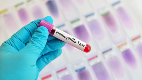 L'hémophilie, une maladie du sang qui reste handicapante sur le continent