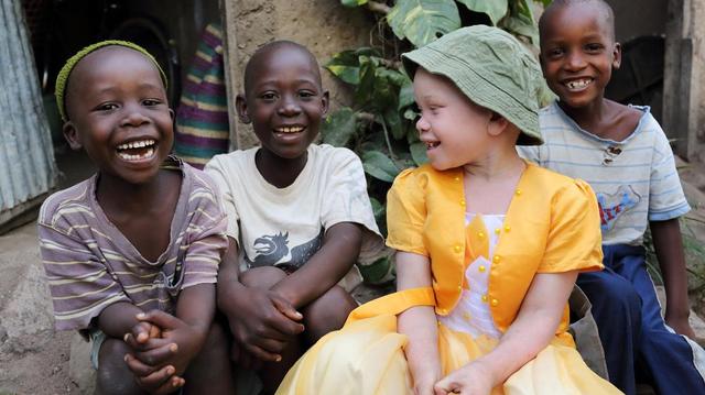 Au Congo-Brazzaville, des diplomates au chevet des albinos