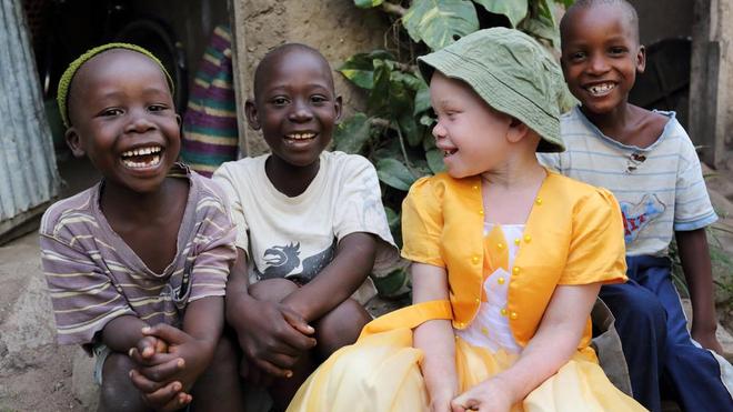L'albinisme est encore mal perçue dans certains pays africains (photo d'illustration)