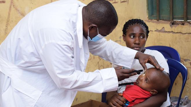 Si votre bébé louche ou a un reflet blanc dans l'œil, consultez rapidement un ophtalmologue (photo d'illustration)