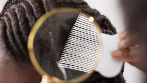 Poux : pour les cheveux afro, c'est un véritable casse-tête
