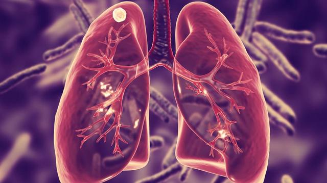 Le Covid-19 freine la lutte contre la tuberculose