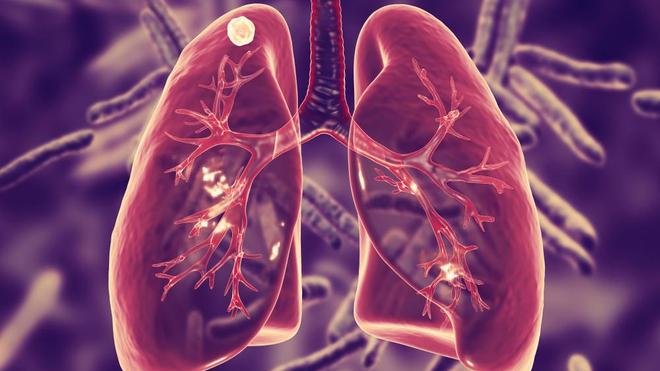 A l'ère du Covid-19, la tuberculose continue de gagner du terrain (photo d'illustration)