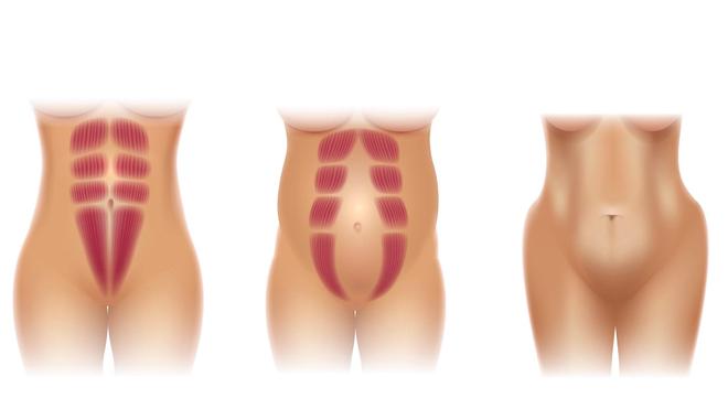 Le diastesis concerne de 30 à 50% des femmes ayant eu un enfant (Image d'illustration)