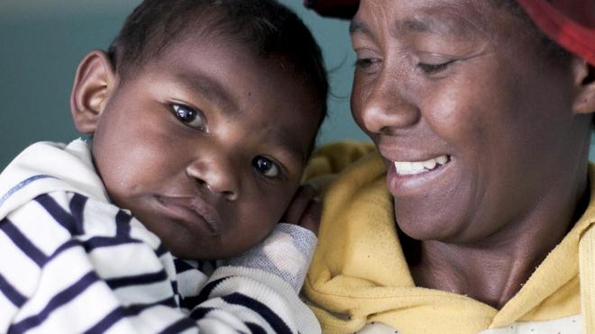 A Madagascar, une vingtaine d'enfants vont retrouver le sourire