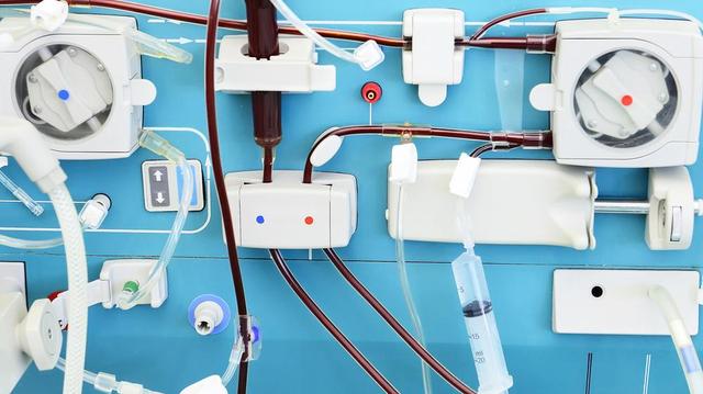 Insuffisance rénale : le Cameroun veut fabriquer ses propres kits de dialyse