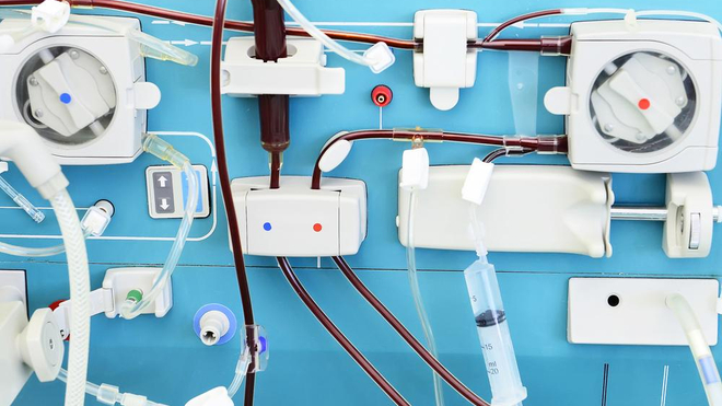Le Cameroun veut produire ses propres kits d'hémodialyse (photo d'illustration)