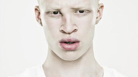 En RD Congo, le soleil est l'ennemi numéro un des albinos
