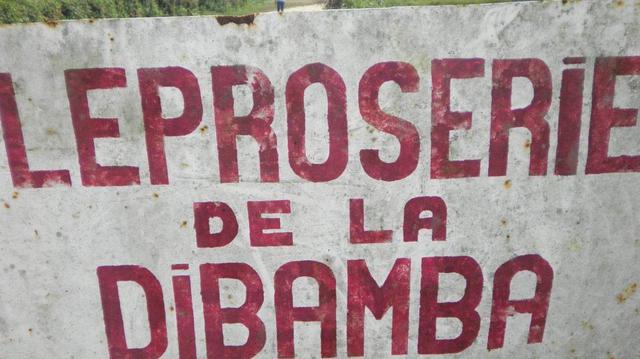 Le Cameroun veut en finir avec la lèpre