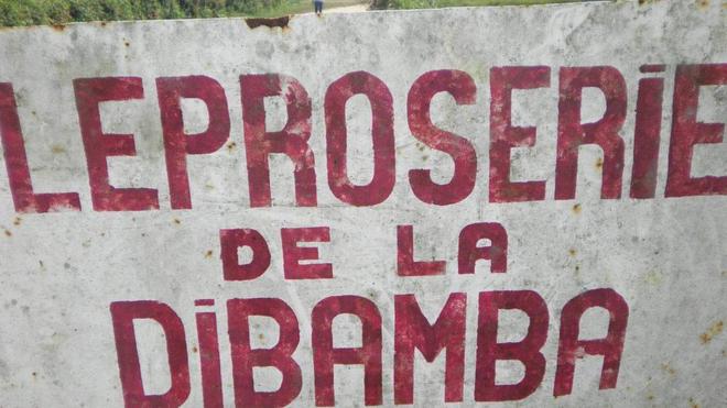 Dans la région de Douala, la léproserie de Dibamba accueille les anciens malades de la lèpre