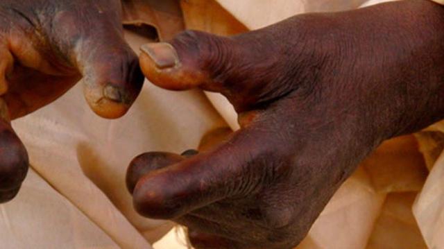 En RD Congo, la lèpre détruit des vies !