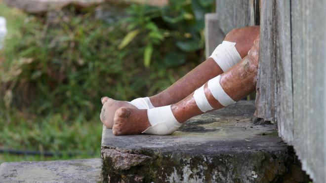 Non traitée, la lèpre déforme, mutile et invalide les personnes atteintes
